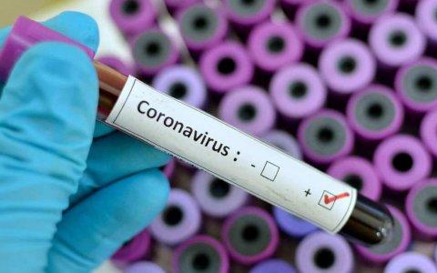 Salud de Entre Ríos informó tres nuevos casos de Covid-19