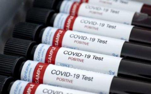 Hoy fueron confirmados 648 nuevos casos de COVID-19 en el país